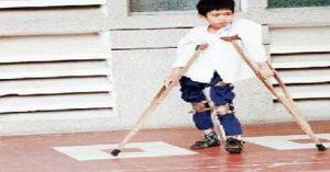 -300x157 مرض شلل الأطفال وأعراضه والوقاية منه