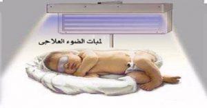 -300x157 مرض الصفراء عند حديثي الولادة وكيفية علاجه