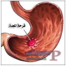 24726869_10155677758464718_1746333646_n علاج واعراض قرحة المعدة ووصفات للتخلص من قرحة المعدة